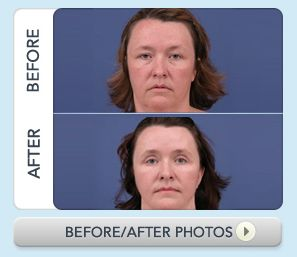 Nashville Plastic Surgery Before and After Photos